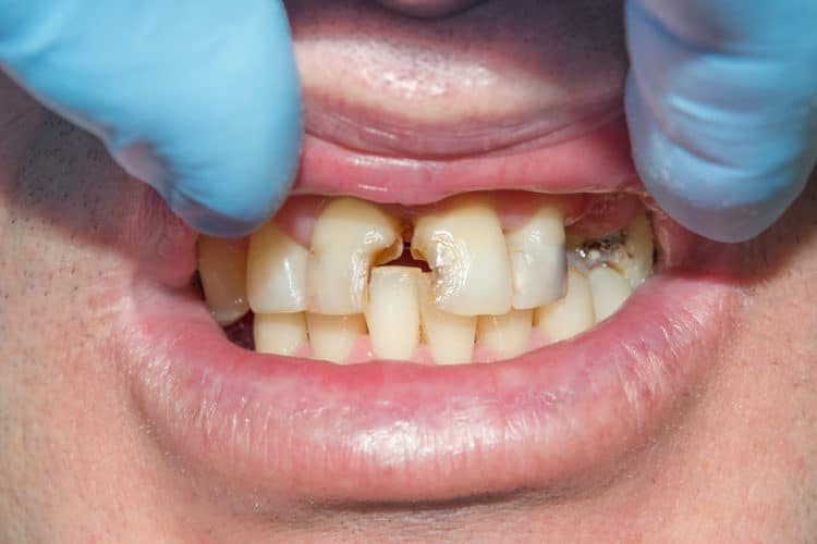 Teeth before restoration
