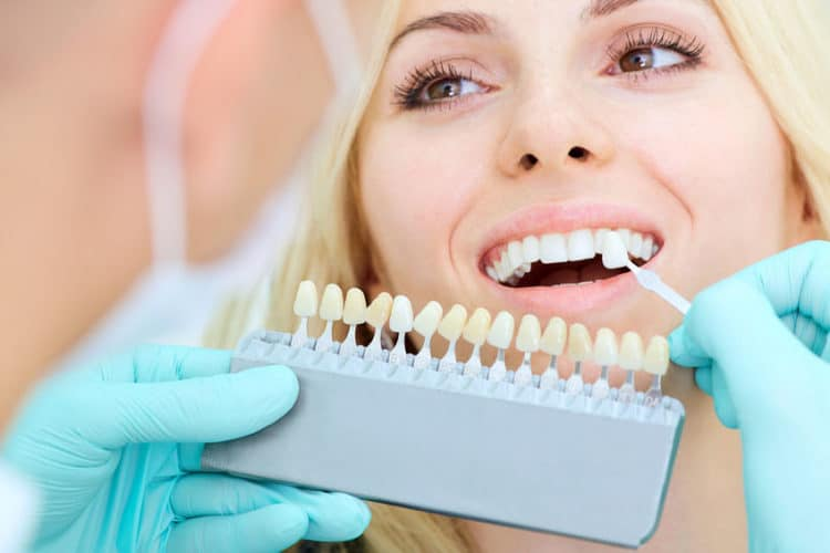 Comparing veneer to natural teeth