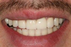 Smile after smile makeover