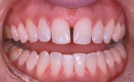Teeth with front middle gap