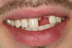 Smile with missing front tooth before smile makeover