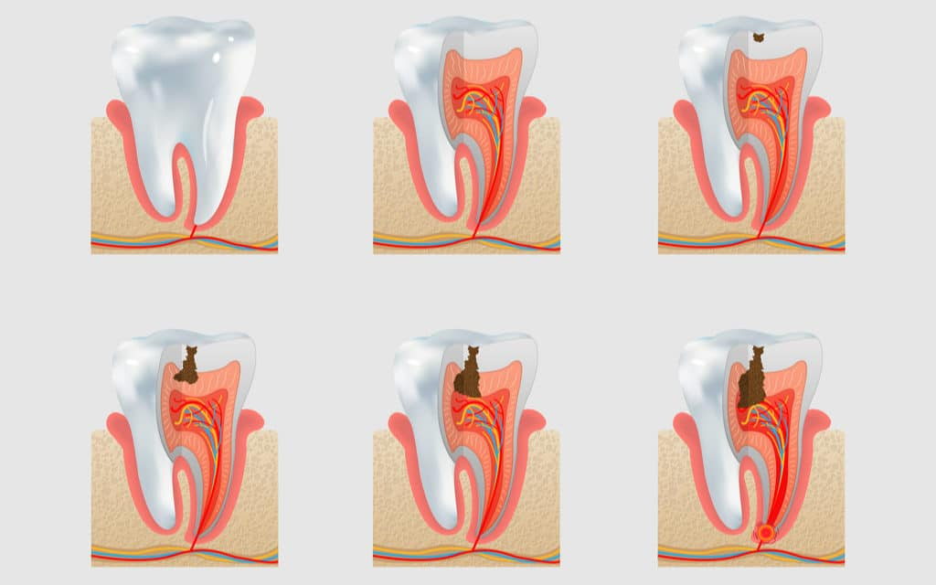 010 stages of tooth decay