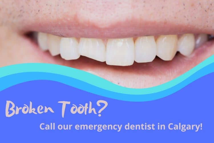 Broken Tooth_emergency dentist Calgary