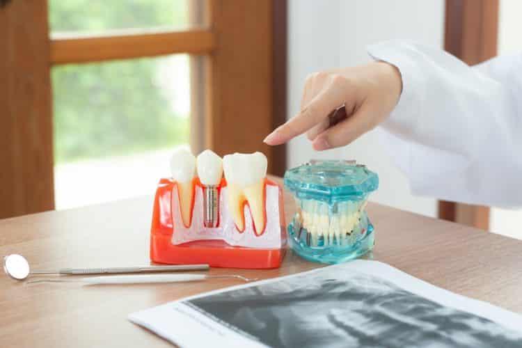 dental implant awareness month